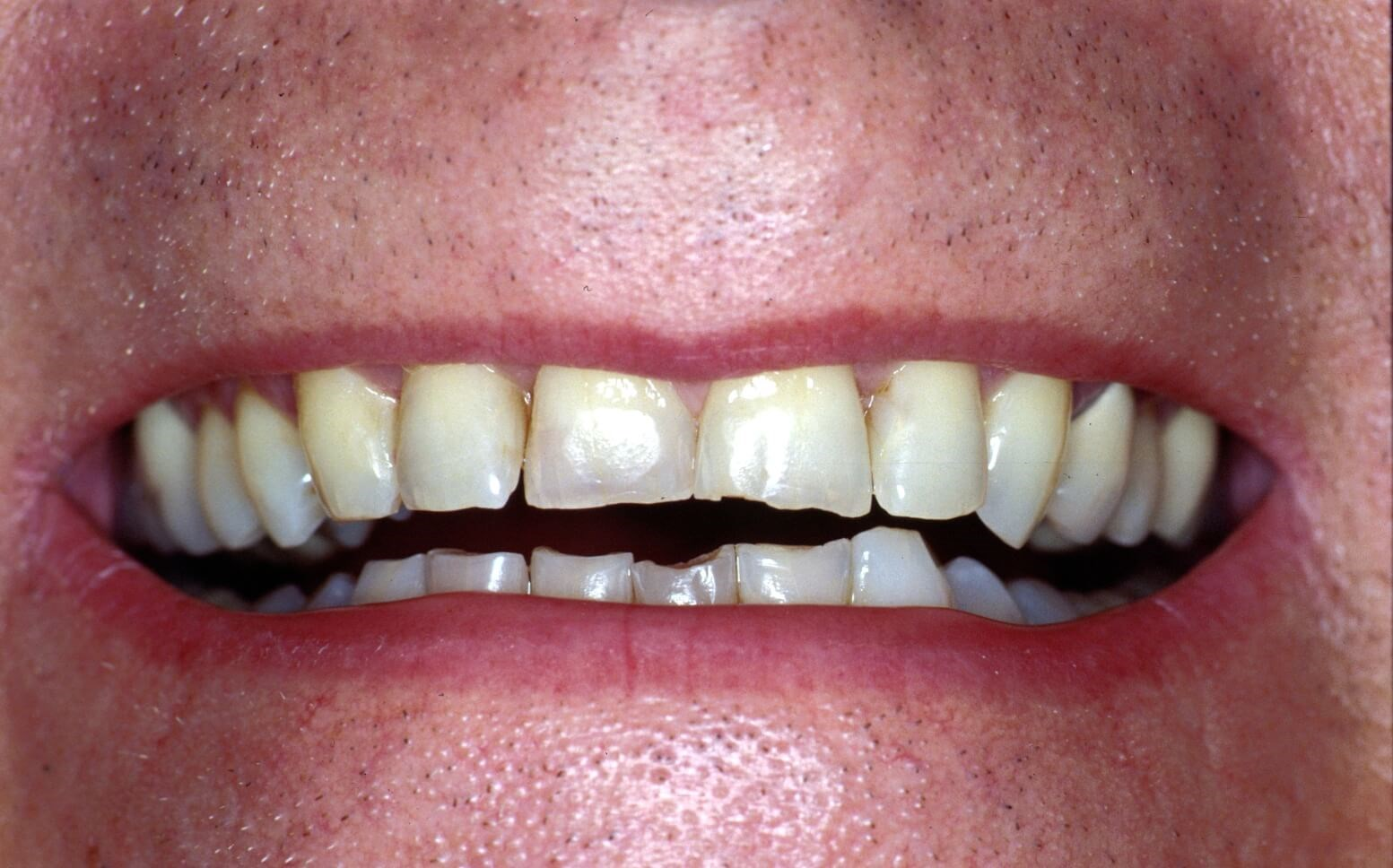 DC Mans Bright New Smile Before