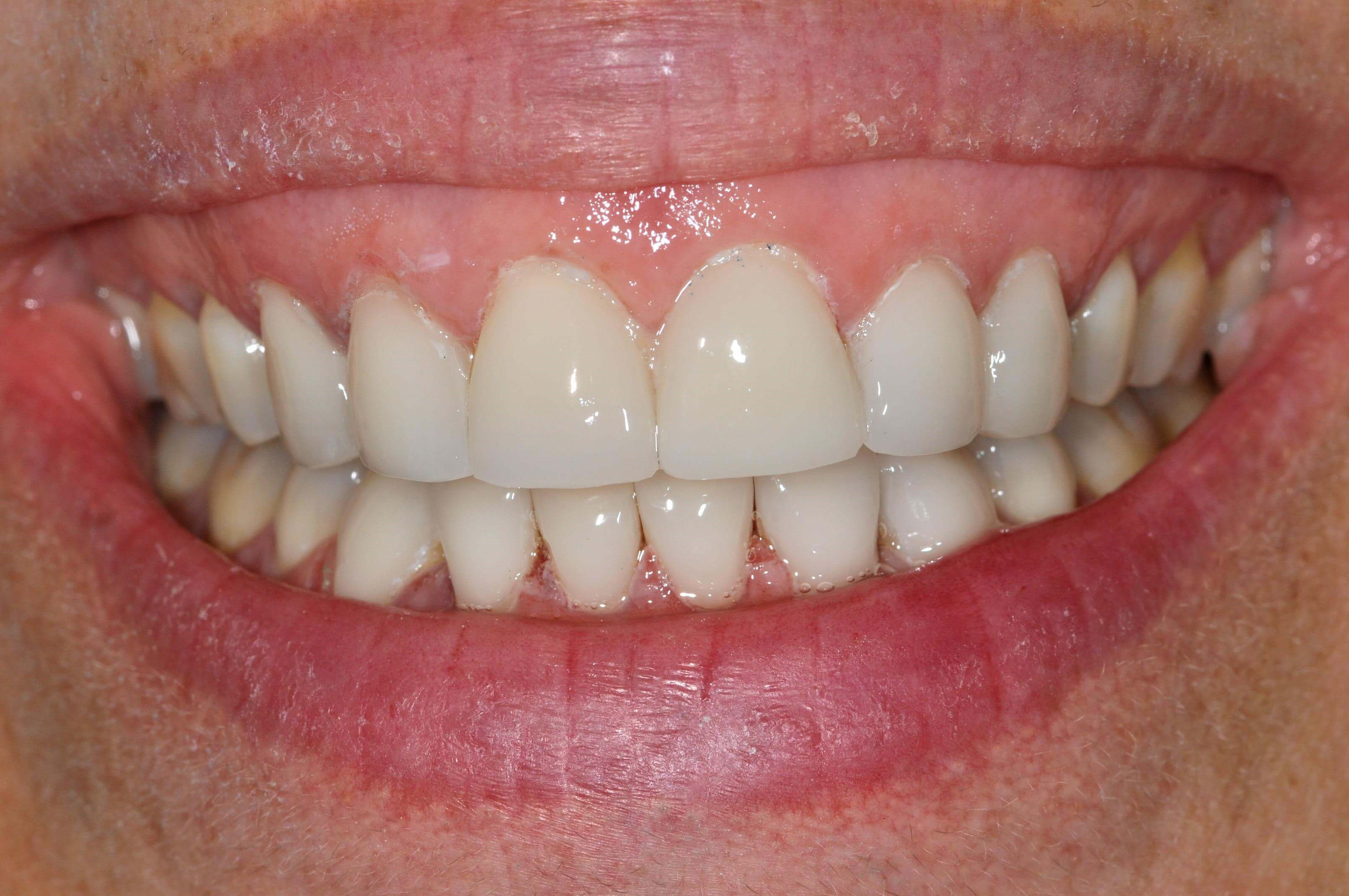 Fresh New Smile with Veneers After