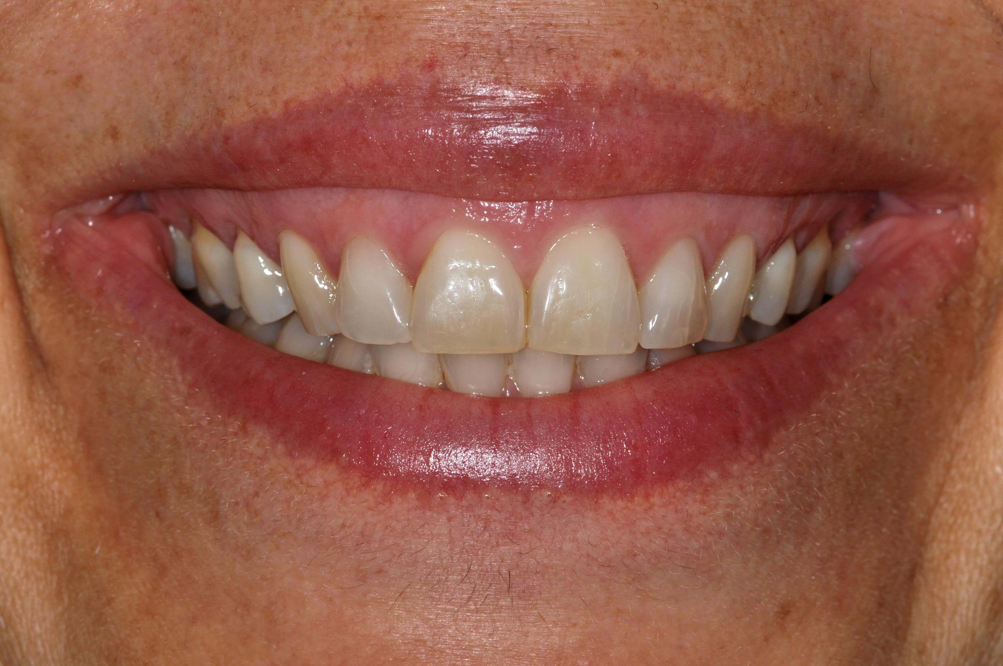 Fresh New Smile with Veneers Before