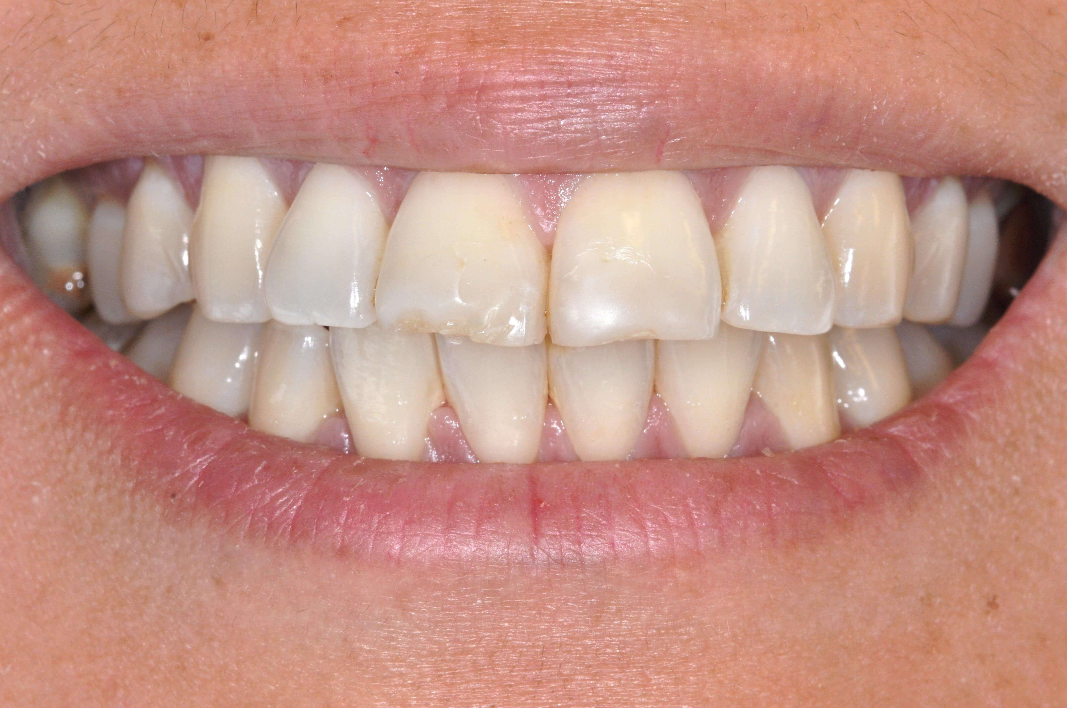 Vibrant Smile with Veneers Before