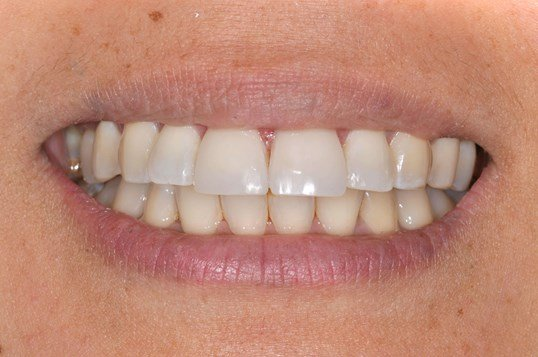 Vibrant Smile with Veneers After