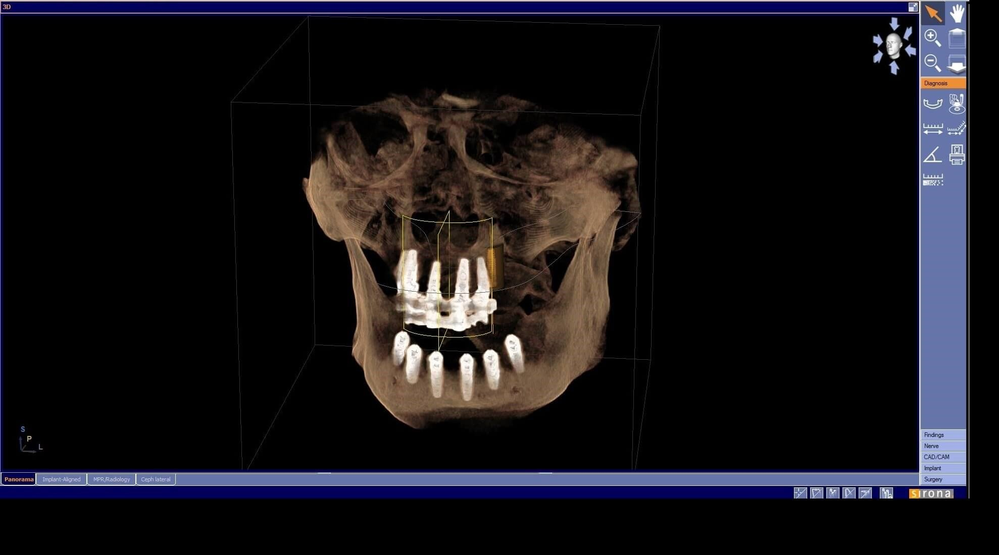 PAN and 3D Scan of implants 3D Scan