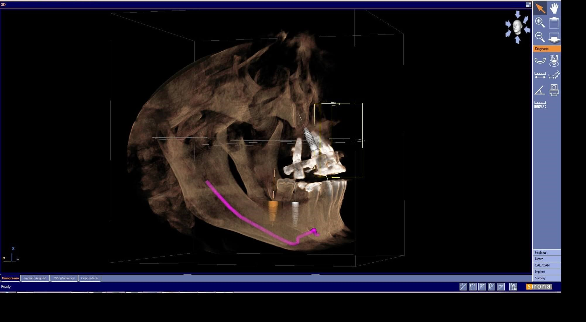 3D Scan and Panoramic X-Ray 3D Scan