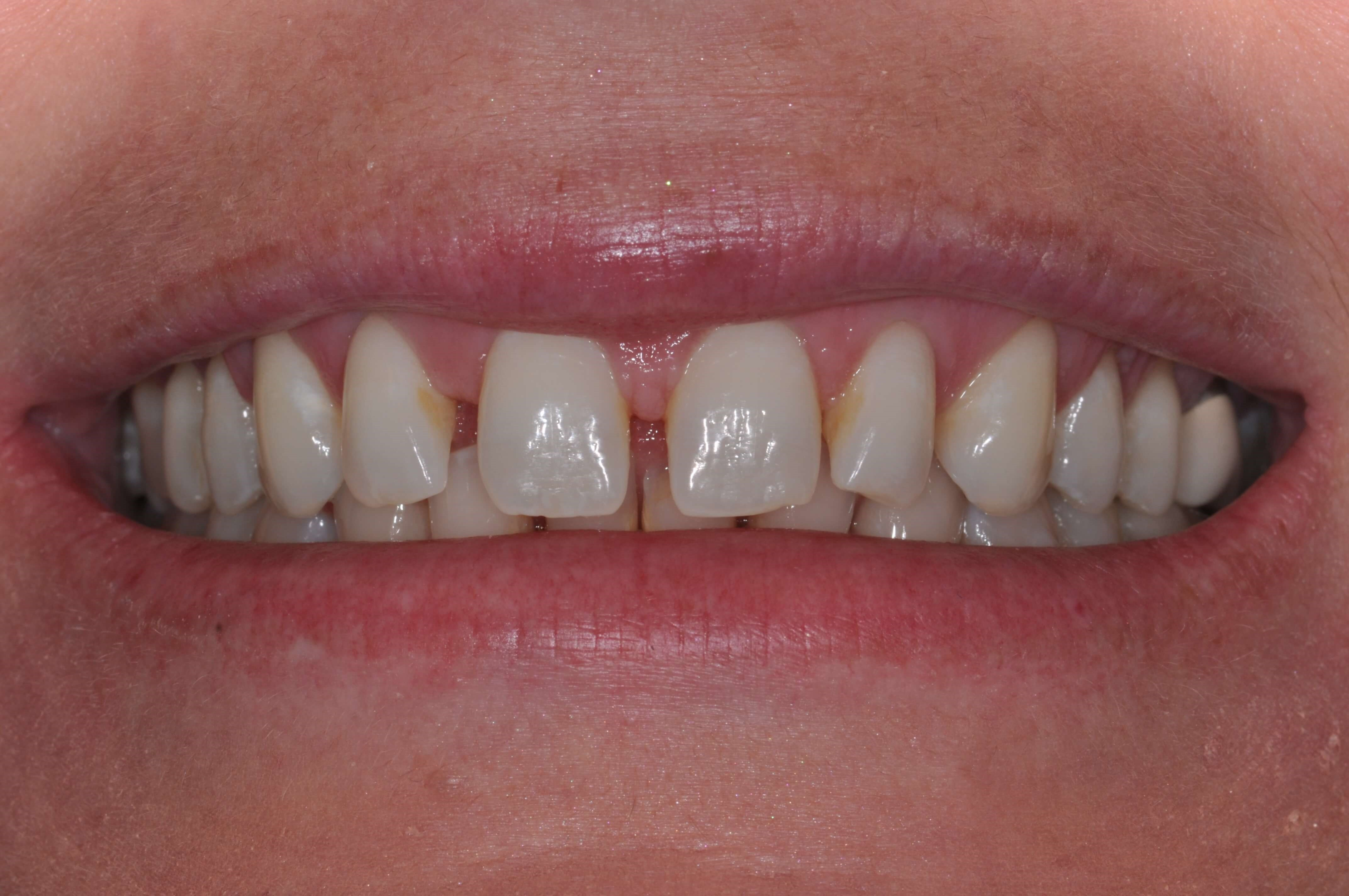 DC Woman's Veneers Before