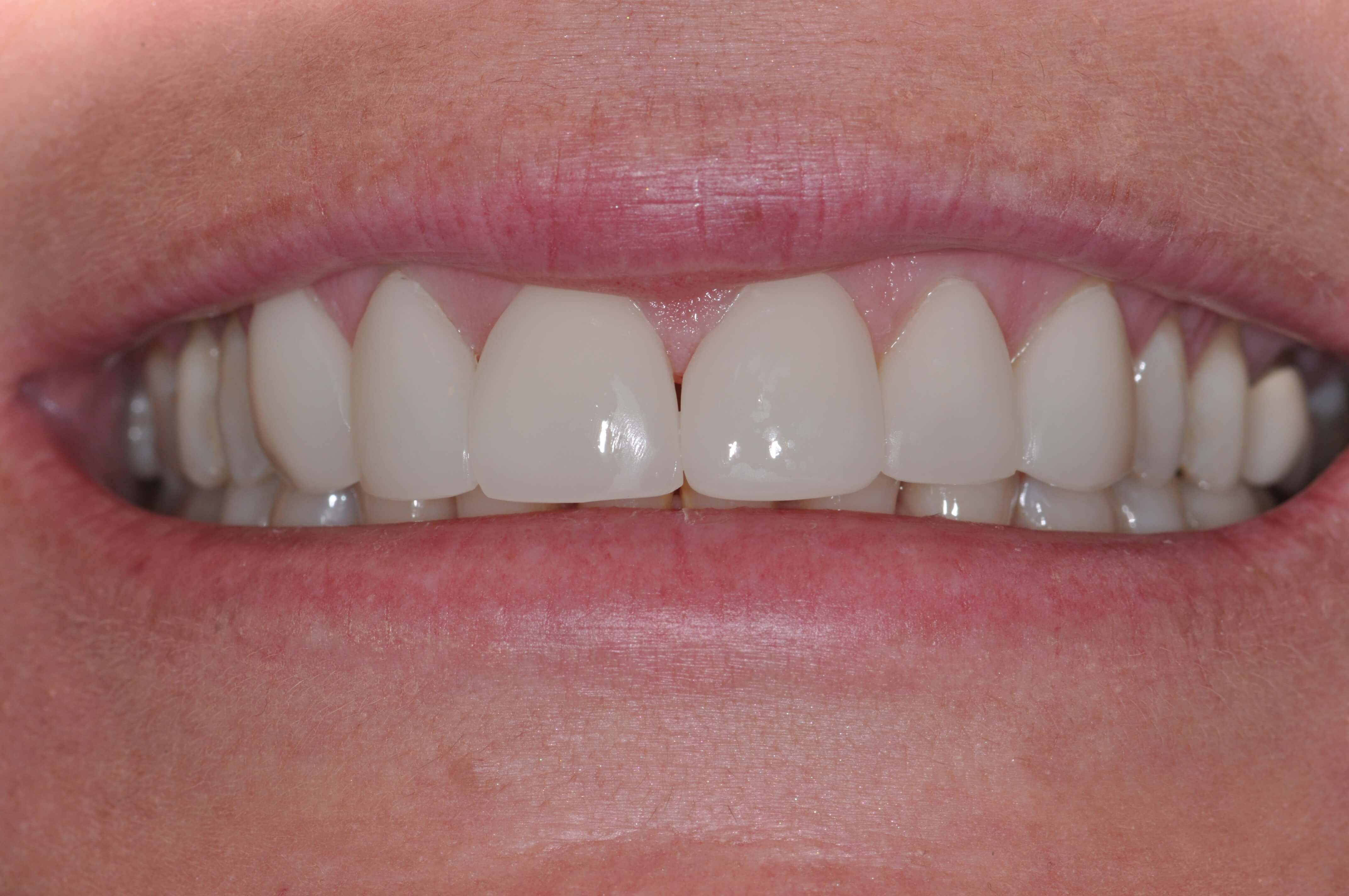 DC Woman's Veneers After