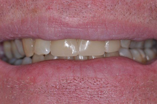 DC Man's Veneers After