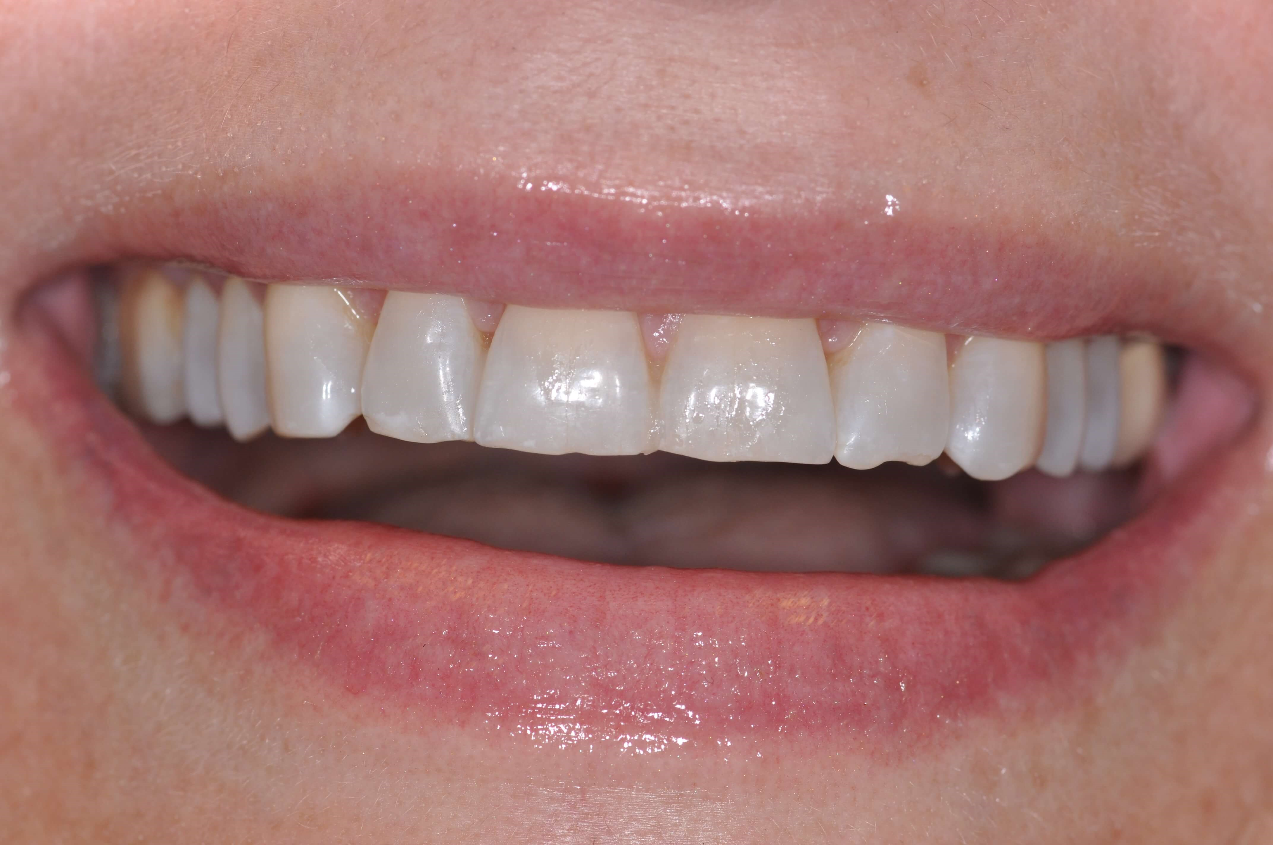 Smile in a day with Veneers Before