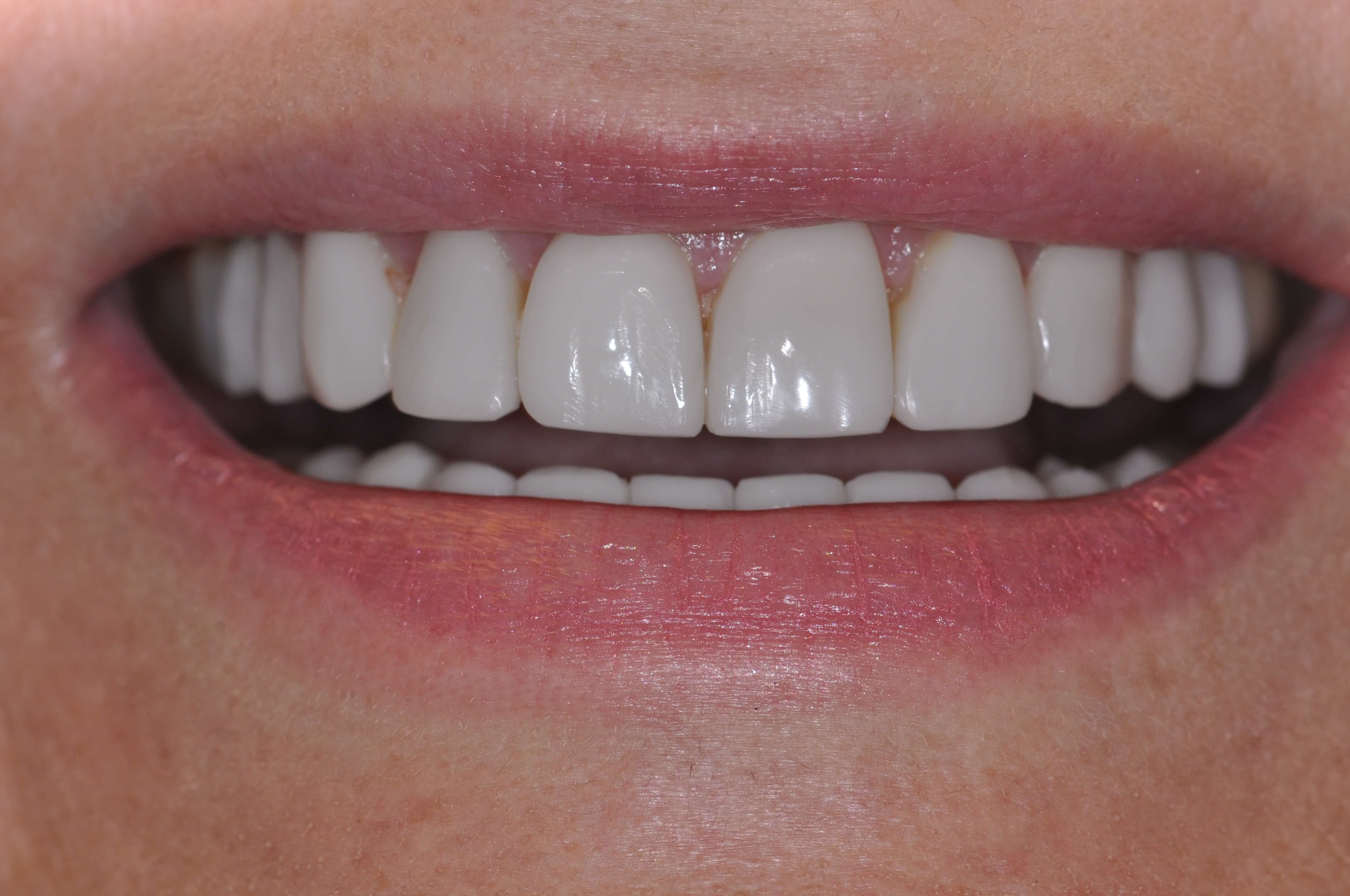 Smile in a day with Veneers After