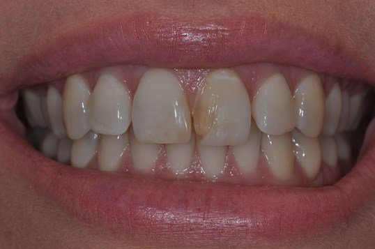 Same Day Veneer Replacement Before