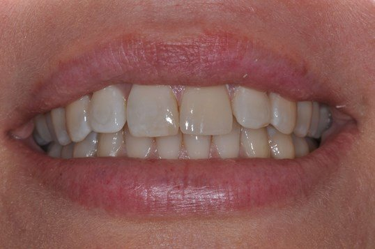 Same Day Veneer Replacement After