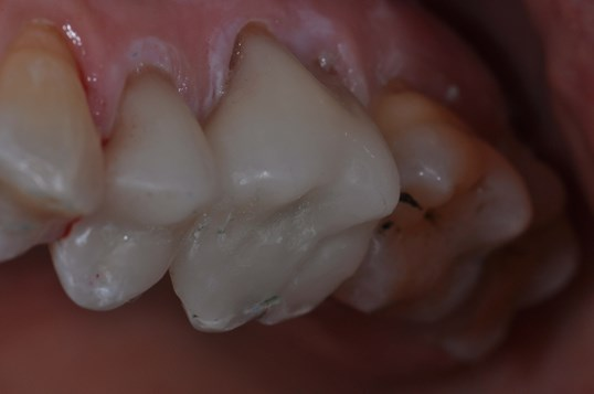 Cerec Crown After