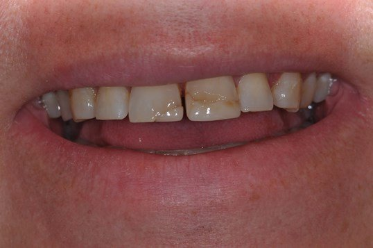 Same Day Veneers Before