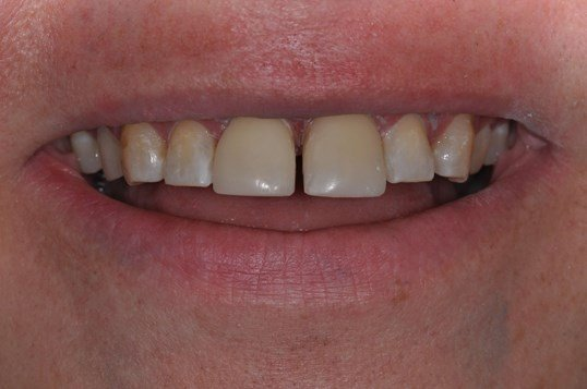 Same Day Veneers After