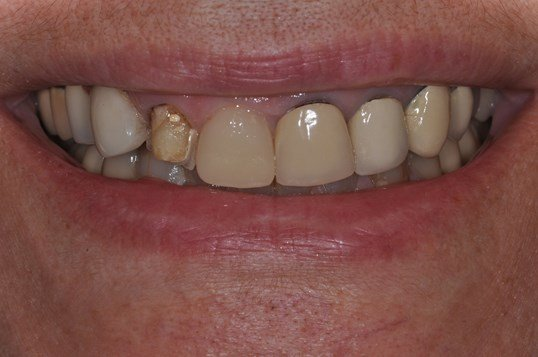 Same Day CEREC Crown Before