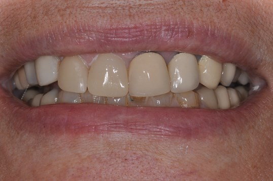 Same Day CEREC Crown After