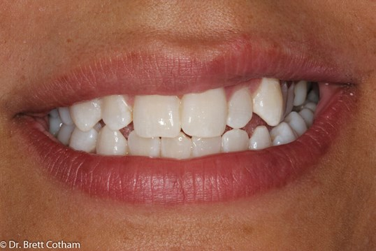 Before And After Home Teeth Whitening Zoom Whitening Dental