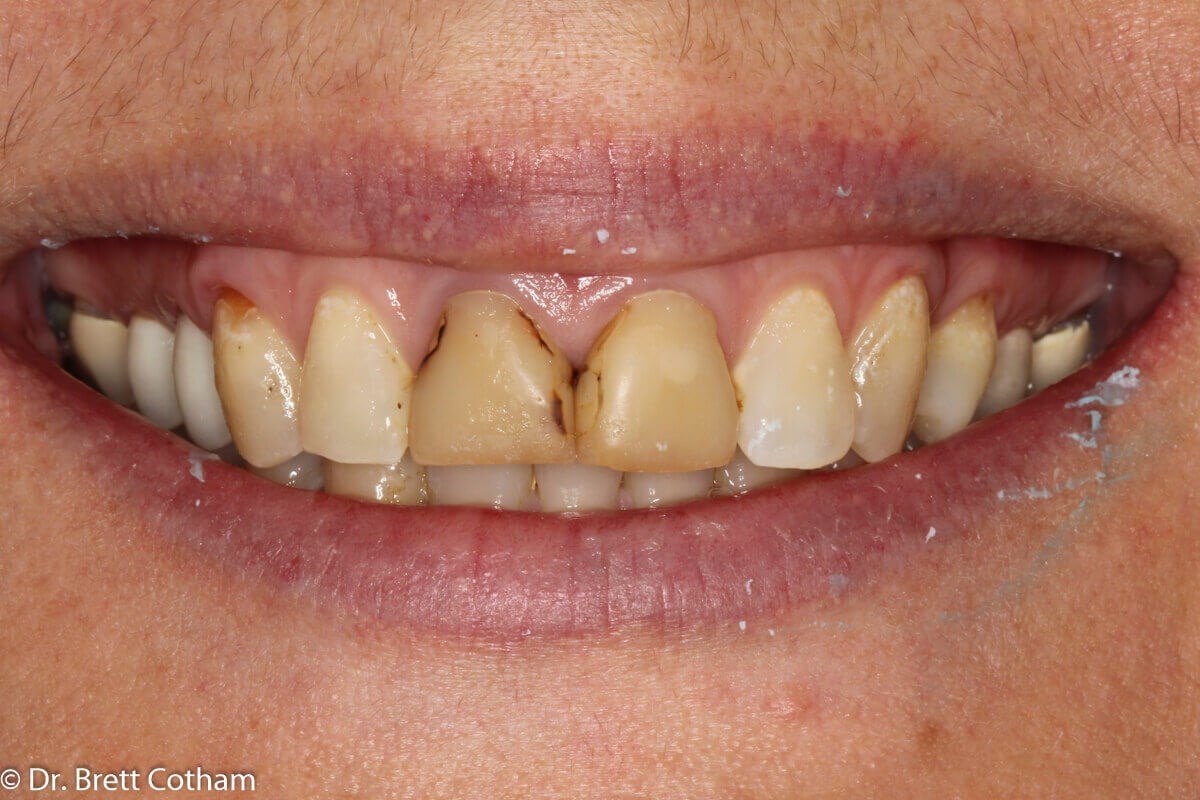 Anterior Smile Before