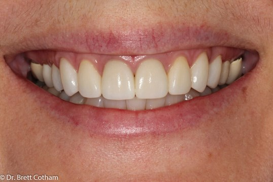 Anterior Smile After