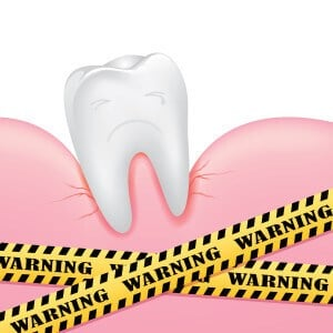 What To Do If You Have A Loose Tooth