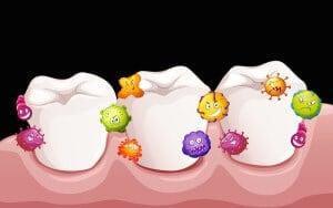 How To Avoid Gum Disease