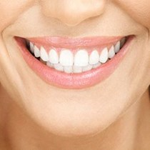 Home Tooth Whitening