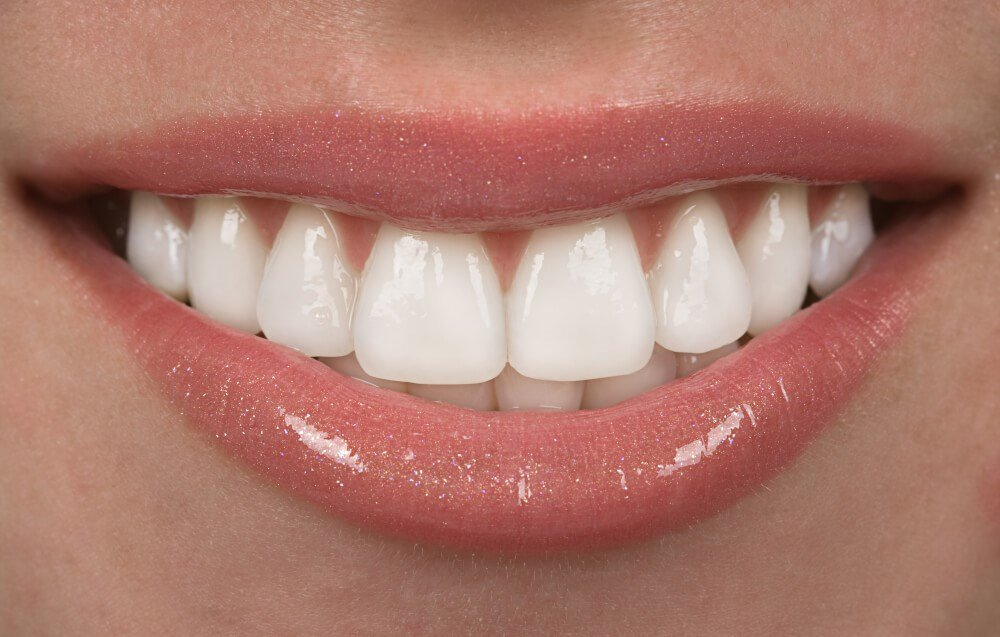 Woman Smiling Teeth Photo