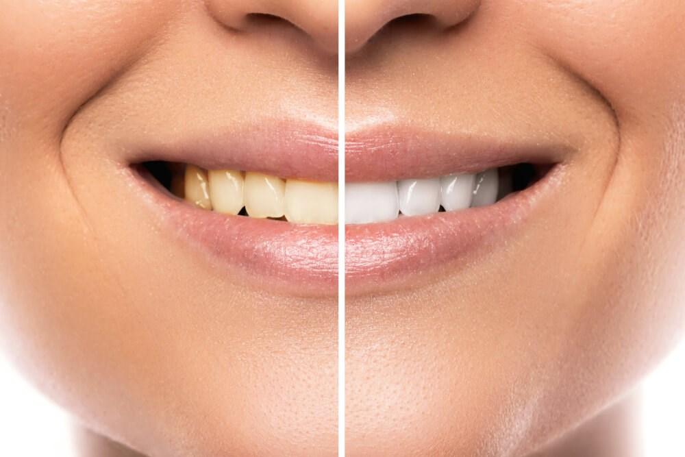 Yellow to White Teeth Photo