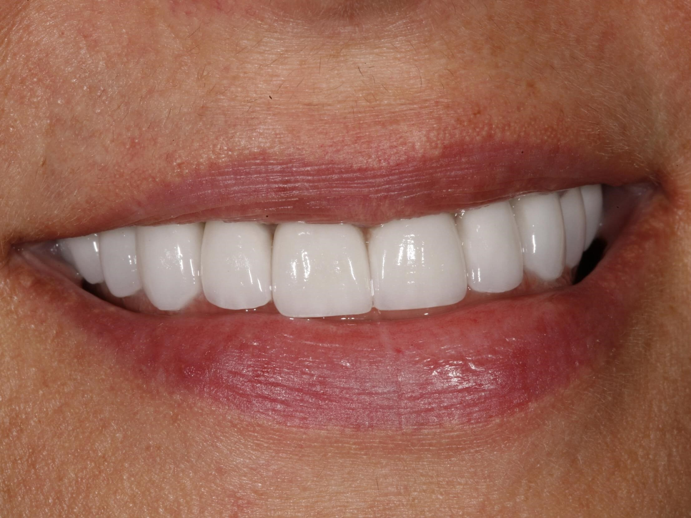 Da Vinci Smile Makeover After