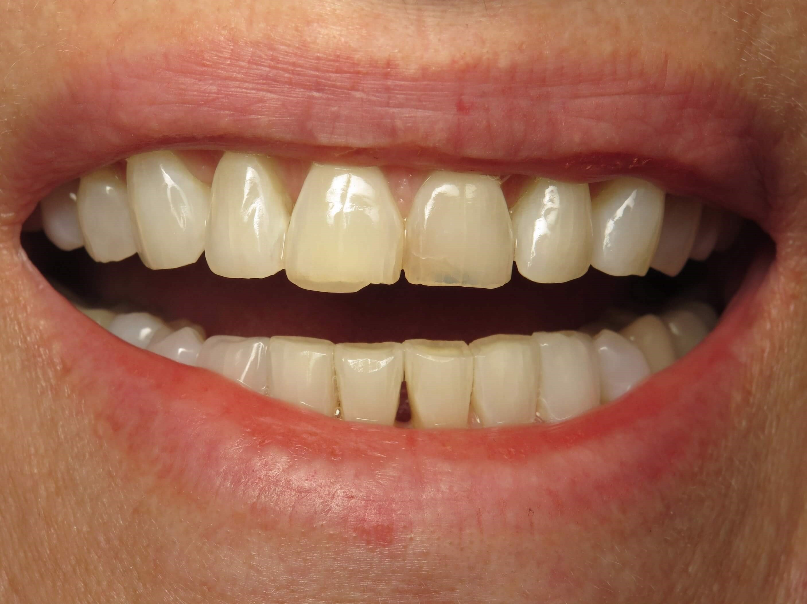 Veneers after Ortho Before