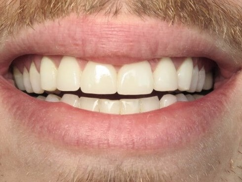 Chipped Teeth After