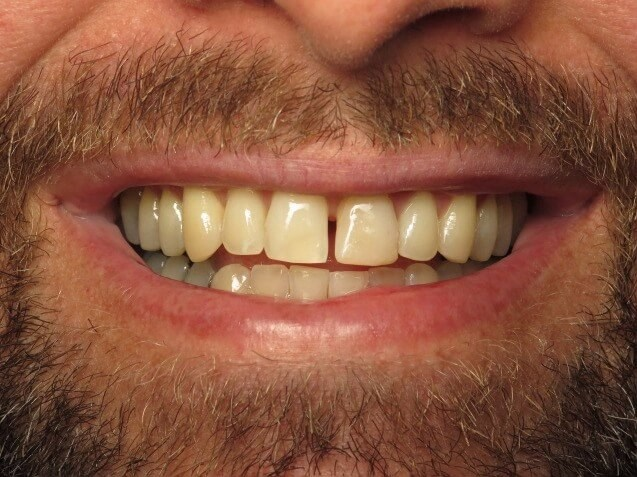 Da Vinci Veneers Smile Makover Before