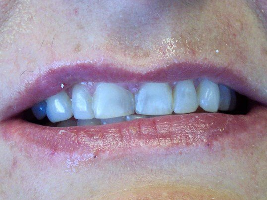 Veneers and Gum Contouring Before