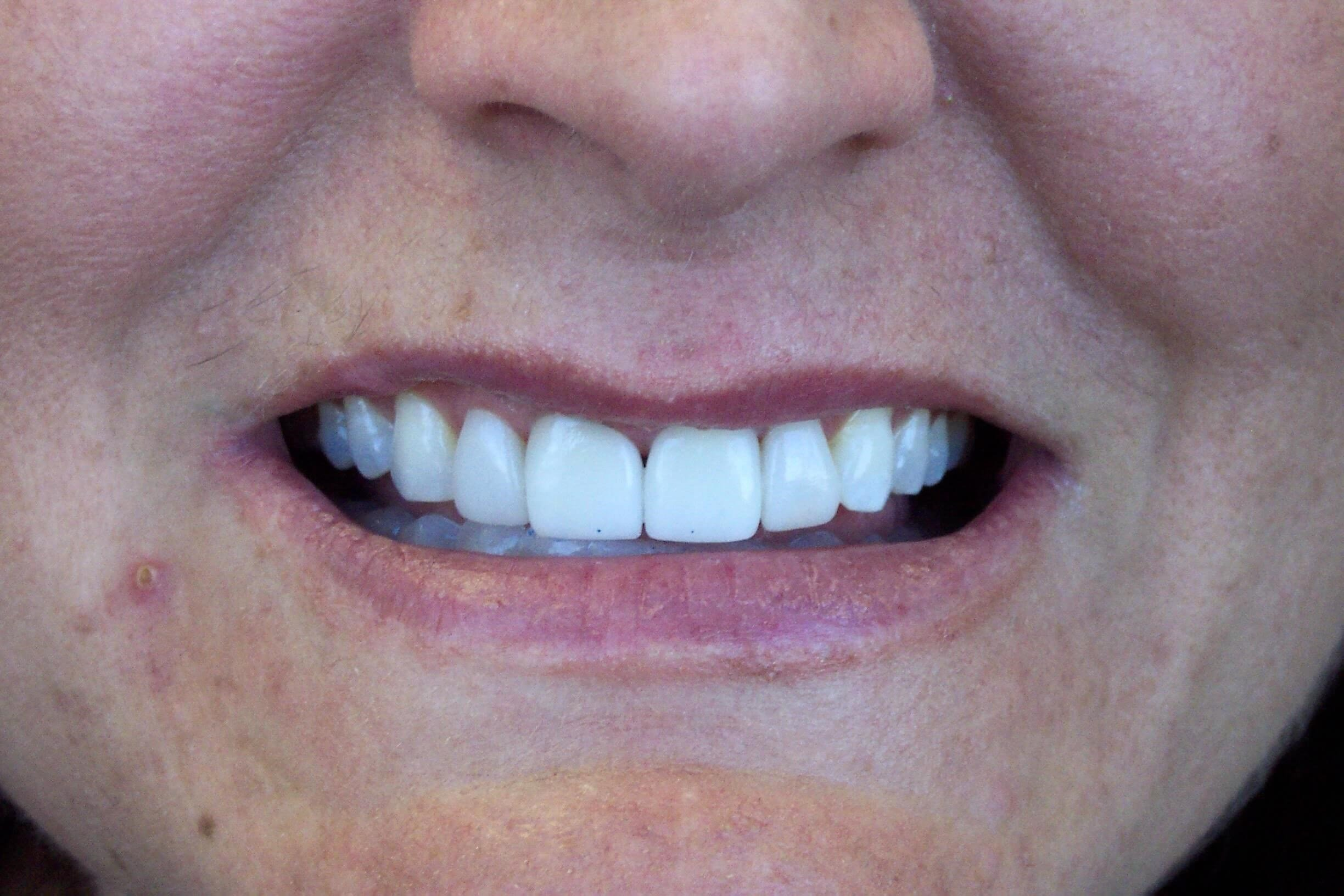 Veneers and Gum Contouring After