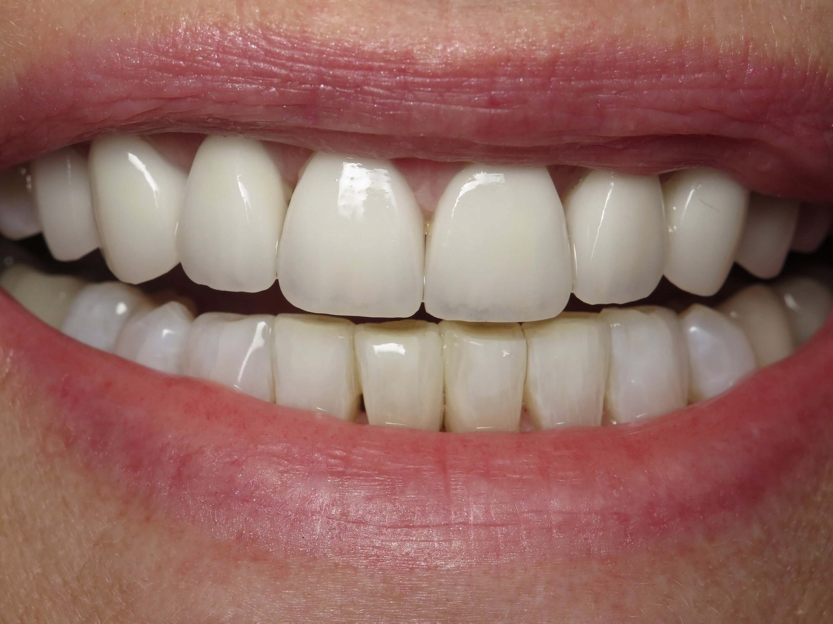 Veneers after Ortho After