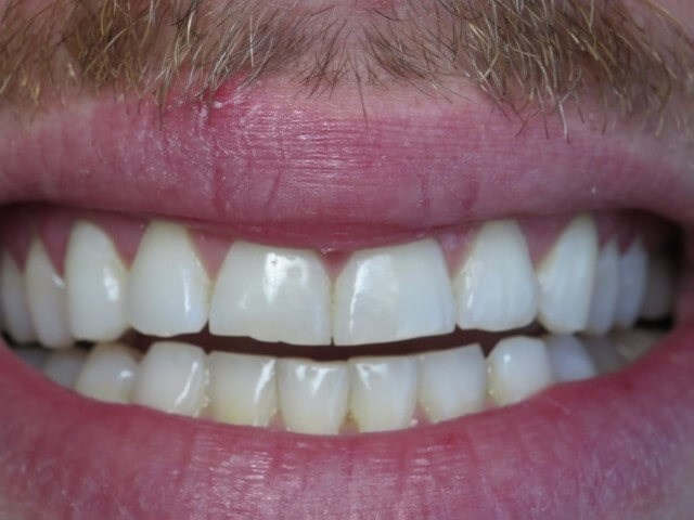 Correct Front Teeth Before