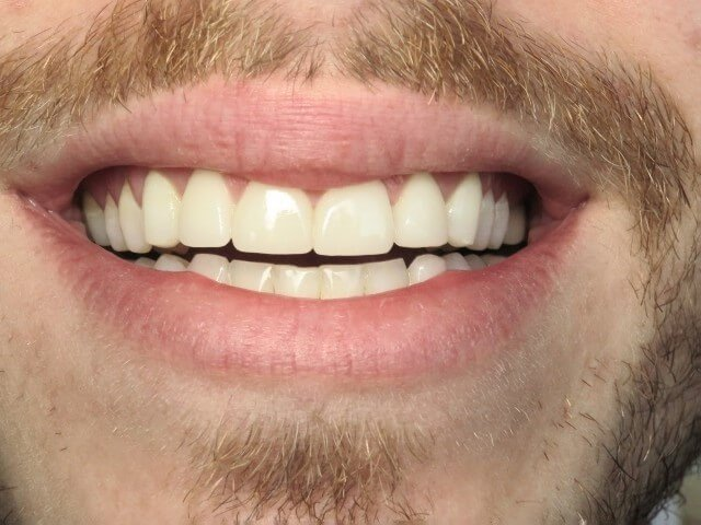Correct Front Teeth After