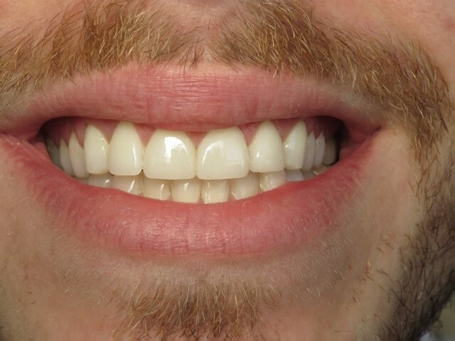 Corrected Front Teeth After