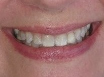 Bridges/ Veneers/ Whitening Before