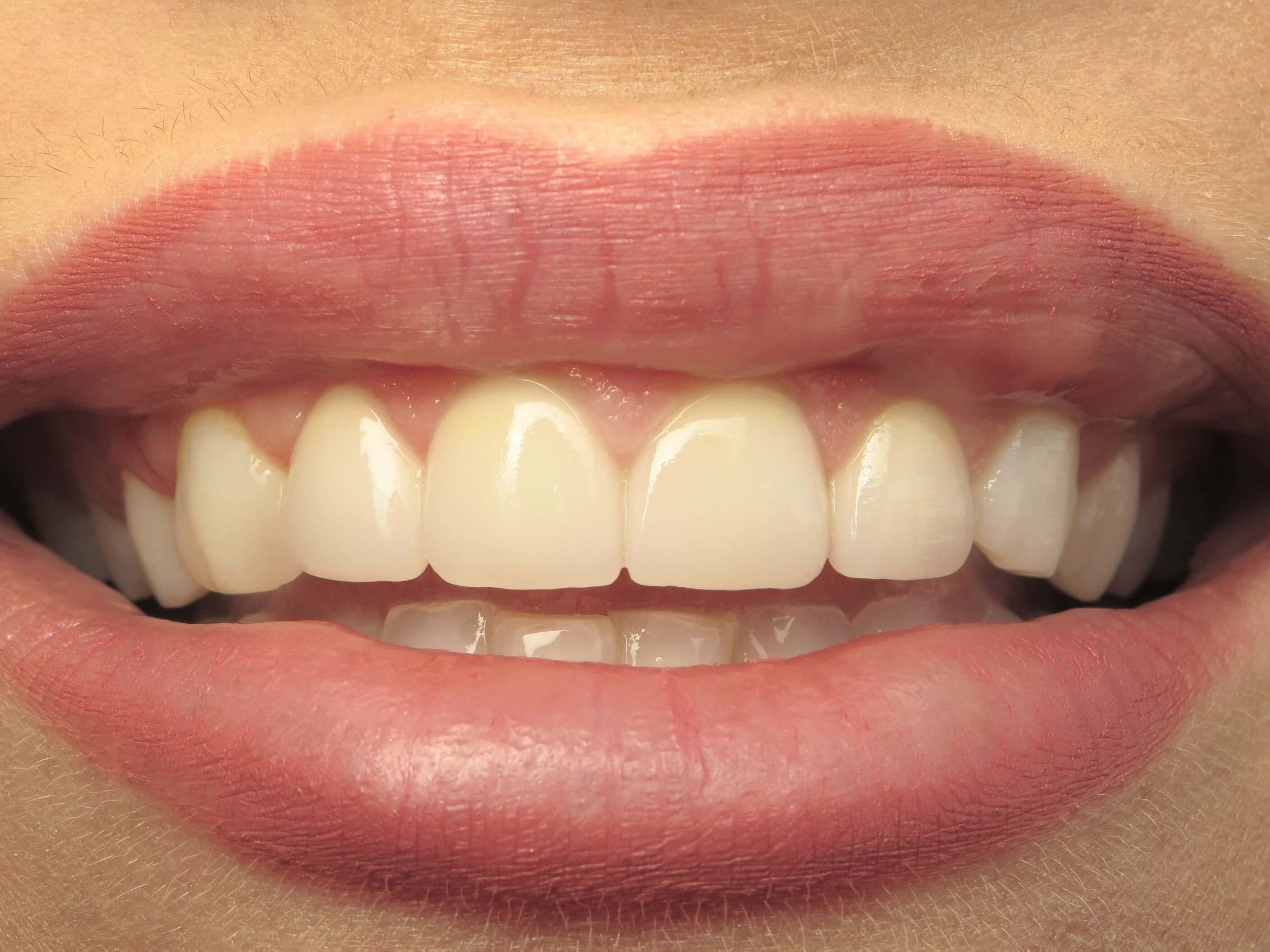 Veneers/ Gum Contouring After