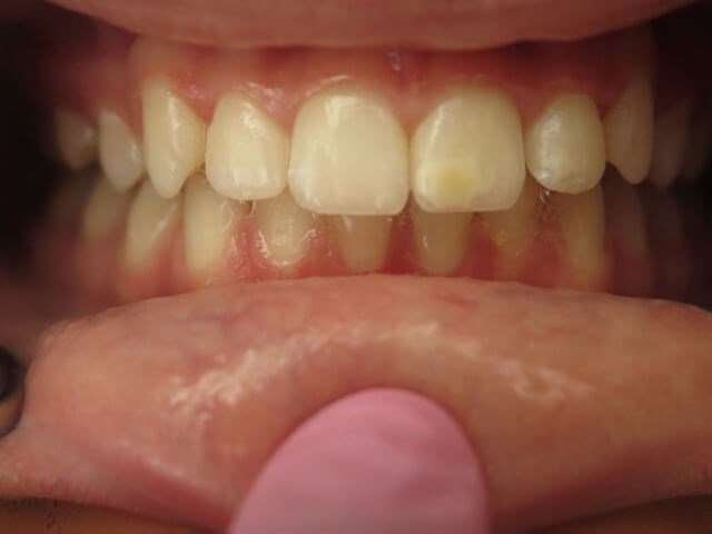 Spots on Teeth Before