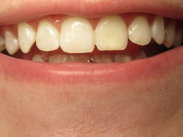 Spots on Teeth After