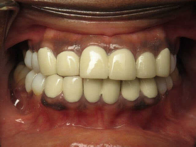 Replacing Current Crowns Before