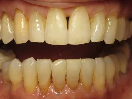 Bone Loss/ Crowded Teeth After