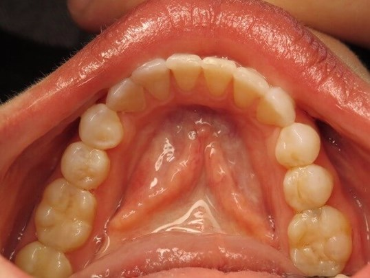 Lower Arch, Crowded Teeth After
