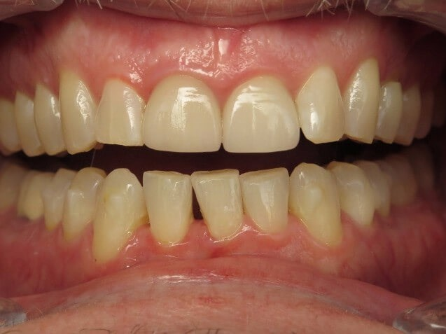 Improved Smile with Invisalign Before
