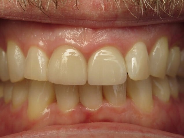 Improved Smile with Invisalign After