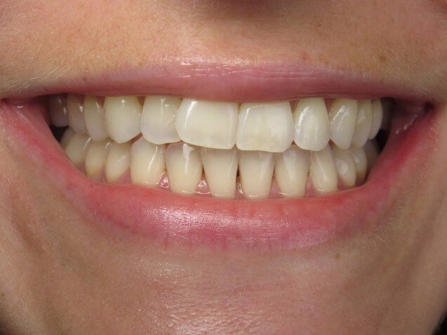 Invisalign Smile Makeover Before