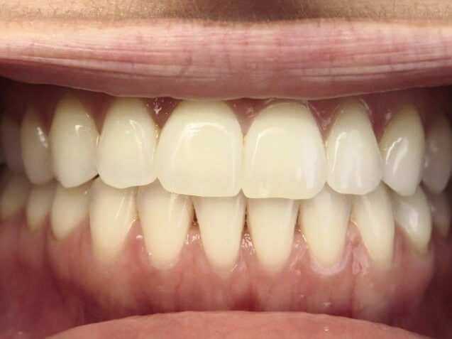 Invisalign Smile Makeover After Invisalign/laser whiten