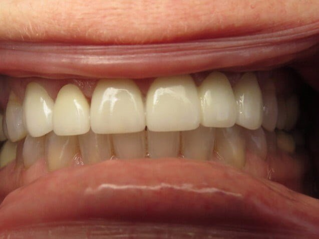 Bridges/ Veneers/ Whitening After
