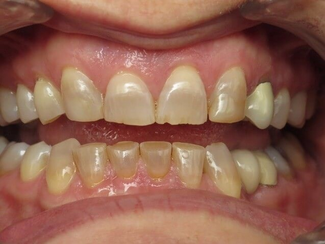 Full Mouth Crowns Before
